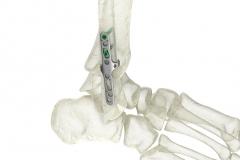Orthopedic-implant-Animation