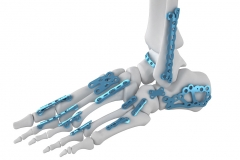 3D-orthopedic-implant-render