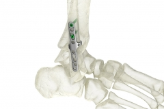 Orthopedic-implant-Animation